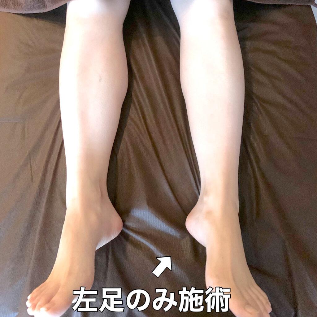 左足のみ施術